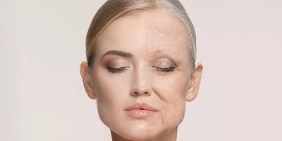皮肤出现这些信号就要开始抗老了