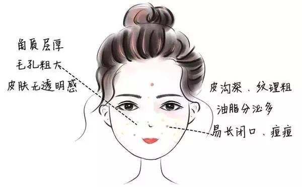 油性皮肤应该如何改善