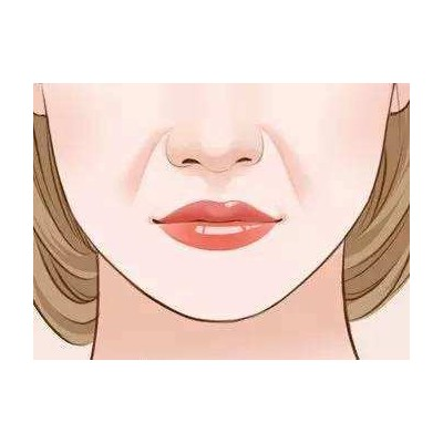嘴唇干裂脱皮可以用蜂蜜涂抹吗