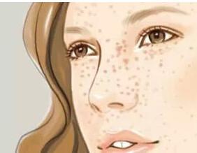 导致女性黄褐斑的元凶有哪些呢