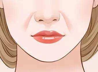 女生长闭口粉刺的诱因要警惕