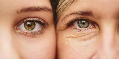 眼周为什么最容易长细纹?该如何预防?