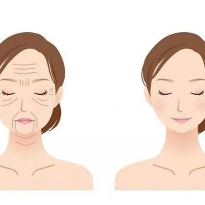 女性该如何预防和对抗衰老